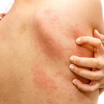 dermatitis-atopica-1