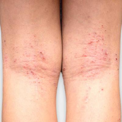 dermatitis-atopica-3